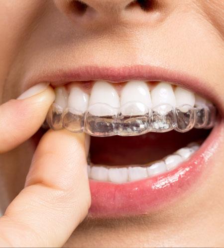 Invisalign orthodontie